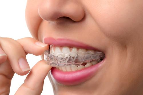 Woman putting in invisalign | Dentist Toronto ON