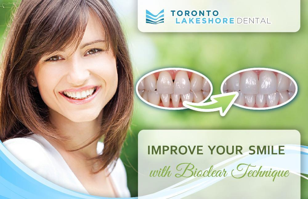 Flyer for black triangle treatment | Dentist Toronto