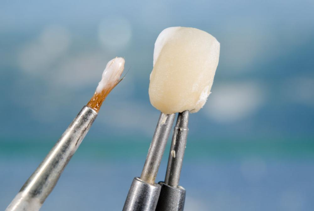 dental crown being created in Etobicoke ON