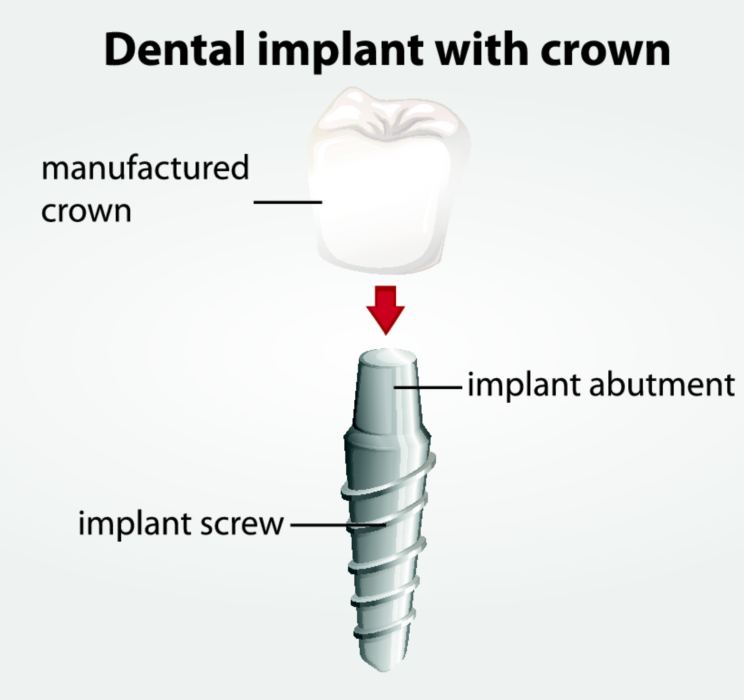 dental implant diagram | dentist toronto on