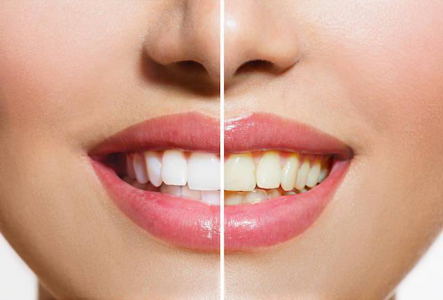 before and after photo of teeth whitening | Toronto ON Dentist