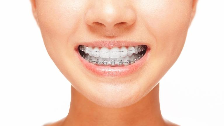 Adult Orthodontics Toronto ON