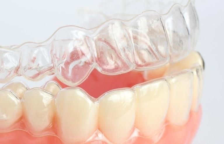 Clear braces | Invisalign in Etobicoke ON