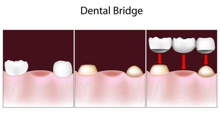 Diagram of dental bridge | Toronto ON Dentist