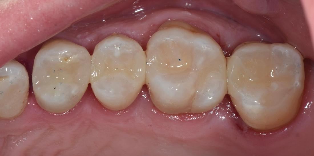 Teeth with tooth-coloured restorations | Toronto ON Dentist