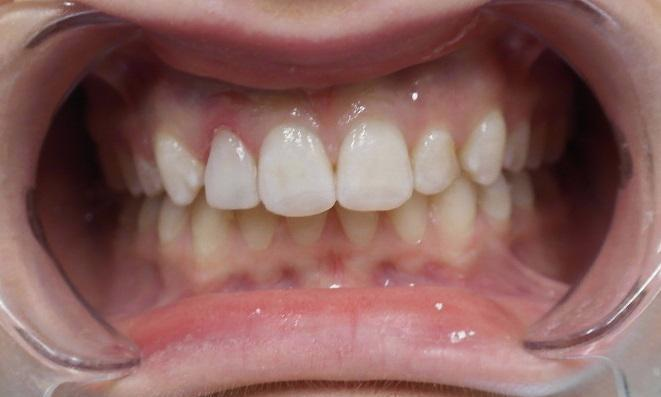 Brightened front teeth | Dentist Toronto ON