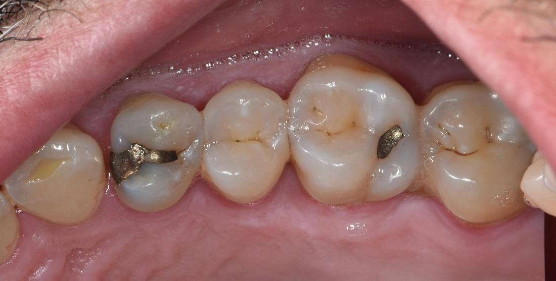 Teeth with silver restorations