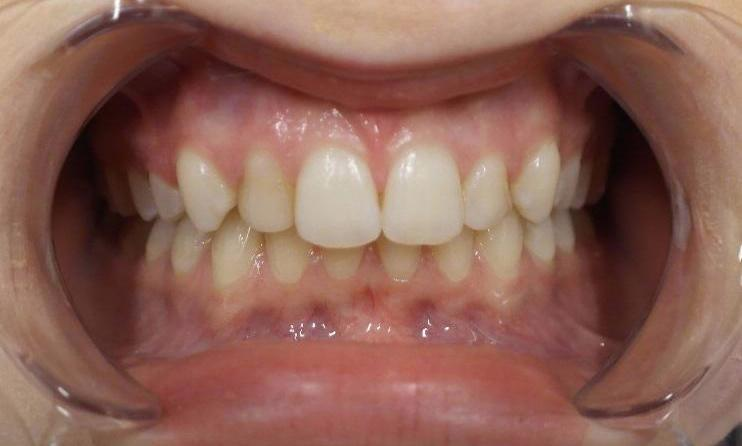 Discoloured Teeth | Dentist Toronto ON