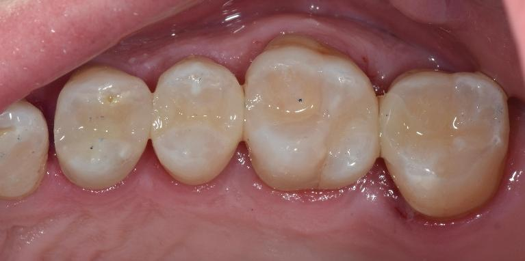 Composite-Tooth-colour-restorations-After-Image