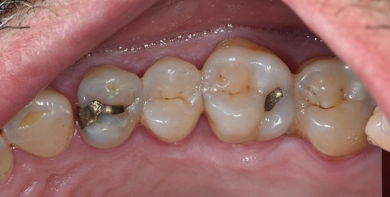 Composite-Tooth-colour-restorations-Before-Image