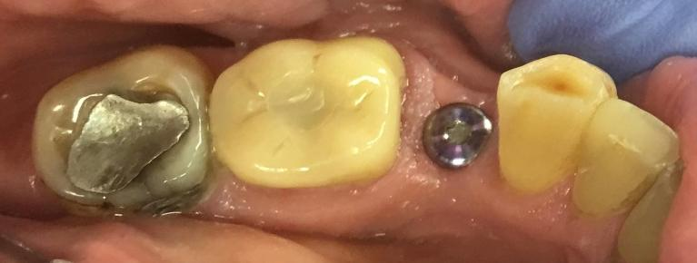 Dental-Implant-with-a-Crown-Before-Image