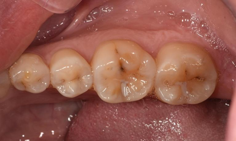 Discoloured grooves in molars | Dentist Toronto ON